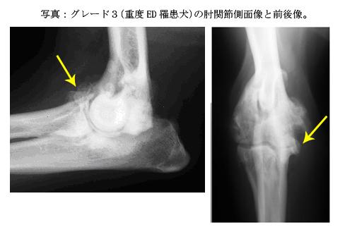 グレード3の肘関節側画像と前後像